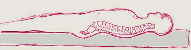 Form der Wirbelsäule auf einer weichen Matratze